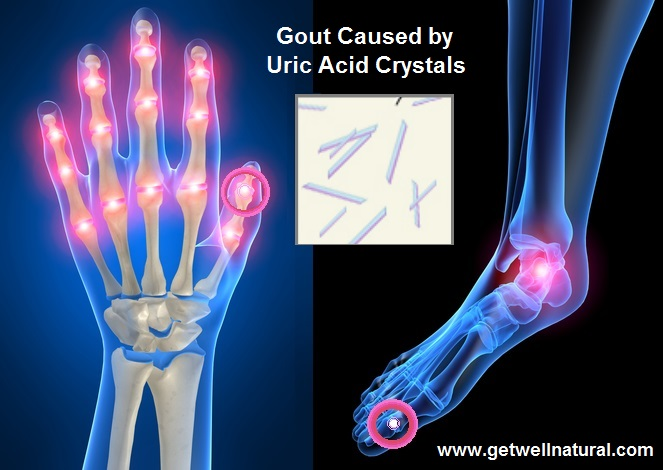 Gout Pain in Human Joint System