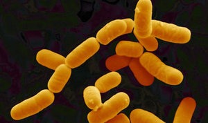 lactobacillus-rhamnosus-46789.1428431687.300.300.jpg